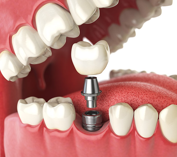 Irvine Will I Need a Bone Graft for Dental Implants